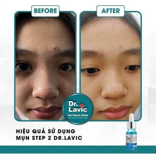 Mụn step 2 dr.lavic