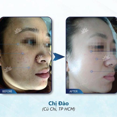 Super Detosy Shafana 15ml là dòng sản phẩm có tác dụng đào thải độc tố và tái tạo làn da